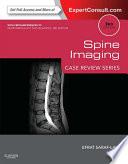 Spine Imaging E Book
