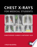 Chest X Rays For Medical Students