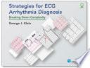 Strategies for ECG Arrhythmia Diagnosis