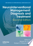 Neurointerventional Management