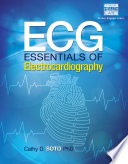 ECG  Essentials of Electrocardiography