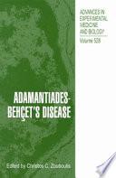 Adamantiades Beh Et S Disease