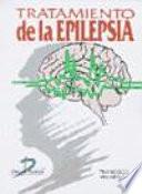 Tratamiento de la epilepsia