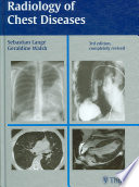 Radiology of Chest Diseases