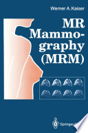MR Mammography  MRM