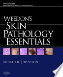 Weedon S Skin Pathology Essentials E Book book
