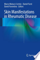 Skin Manifestations in Rheumatic Disease