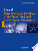 Atlas Of Normal Imaging Variations Of The Brain Skull And Craniocervical Vasculature
