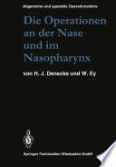 Die Operationen an der Nase und im Nasopharynx