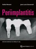 Periimplantitis