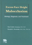Excess Face Height Malocclusion