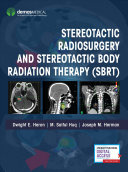 Stereotactic Radiosurgery And Stereotactic Body Radiation Therapy (Sbrt) : comprehensive guide for the practicing physician and...