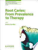 Root Caries From Prevalence To Therapy