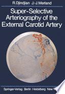 Super Selective Arteriography of the External Carotid Artery