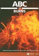 ABC of Burns