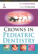 Crowns in Pediatric Dentistry