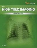 High yield Imaging