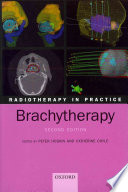 Radiotherapy in Practice   Brachytherapy