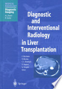 Diagnostic and Interventional Radiology in Liver Transplantation