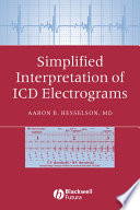 Simplified Interpretation of ICD Electrograms