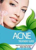 Acne Treatment Guide