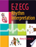 e-z-ecg-rhythm-interpretation