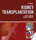Kidney Transplantation Principles And Practice book