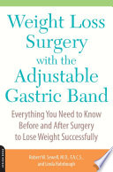 Weight Loss Surgery With The Adjustable Gastric Band