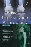download ebook basics in hip and knee arthroplasty pdf epub