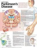 Understand Parkinson S Disease