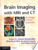 Brain Imaging With Mri And Ct book