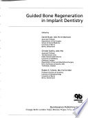 Guided bone regeneration in implant dentistry