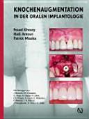 Augmentative Verfahren in der Implantologie