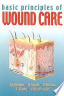 Basic Principles of Wound Care