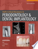 Hall's Critical Decisions In Periodontology And Dental Implantology : ...