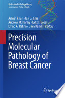 Precision Molecular Pathology of Breast Cancer