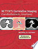 Netter   s Correlative Imaging  Cardiothoracic Anatomy E Book