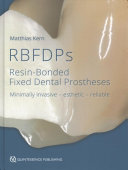 RBFDPs: Resin-Bonded Fixed Dental Prostheses: Minimally Invasive - Esthetic - Reliable