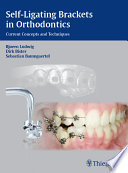 Self Ligating Brackets In Orthodontics