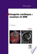 illustration du livre Imagerie cardiaque : scanner et IRM