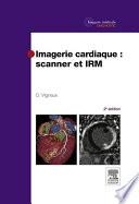 illustration Imagerie cardiaque : scanner et IRM