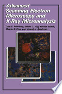 Advanced Scanning Electron Microscopy and X Ray Microanalysis