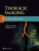 download ebook thoracic imaging: a core review pdf epub