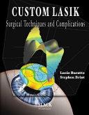 Custom Lasik