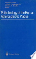Pathobiology of the Human Atherosclerotic Plaque