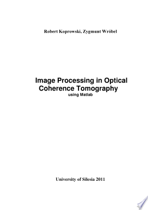 Image Processing in Optical Coherence Tomography Using Matlab - ISBN:9788362462025