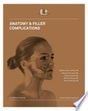 Anatomy Filler Complications