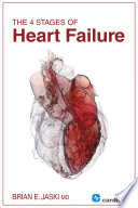 The 4 Stages of Heart Failure