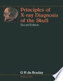 Principles Of X Ray Diagnosis Of The Skull