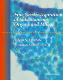 Fine Needle Aspiration of Subcutaneous Organs and Masses